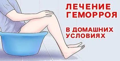 Лечение геморроя в домашних условиях