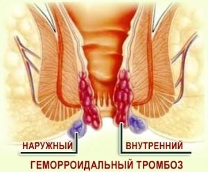 Геморроидальный тромбоз